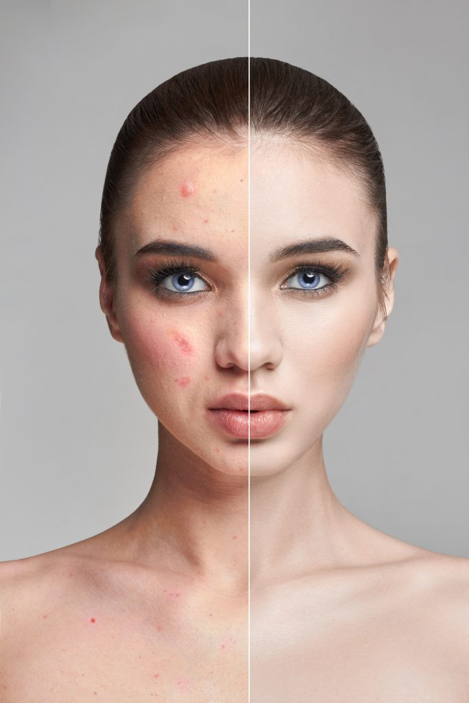 Contract manufacturing of cosmetics for problem skin